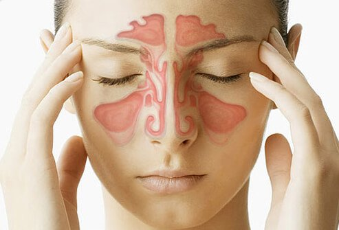 sinusitis_s1_woman_sinus_cavity